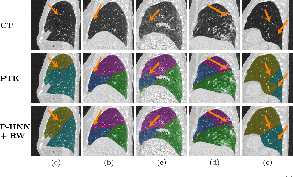 Figure 3 for Pathological Pulmonary Lobe Segmentation from CT Images using Progressive Holistically Nested Neural Networks and Random Walker