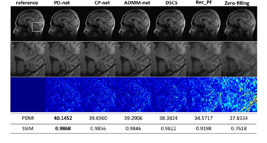 Figure 3 for Model Learning: Primal Dual Networks for Fast MR imaging