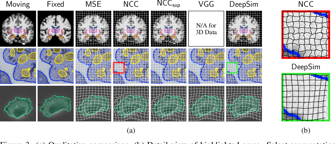 Figure 3 for DeepSim: Semantic similarity metrics for learned image registration