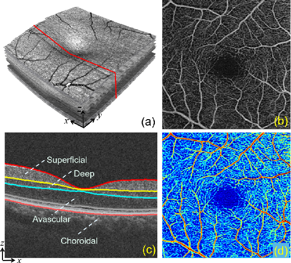 Figure 1 for 3D Vessel Reconstruction in OCT-Angiography via Depth Map Estimation