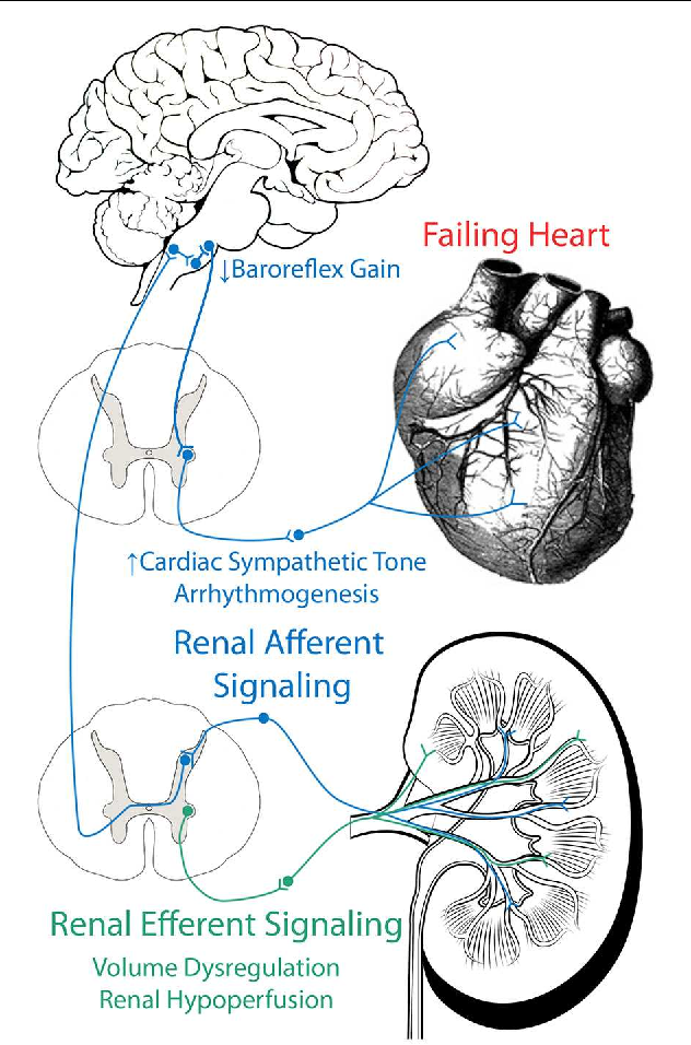 The Renal Nerves In Chronic Heart Failure Efferent And Afferent