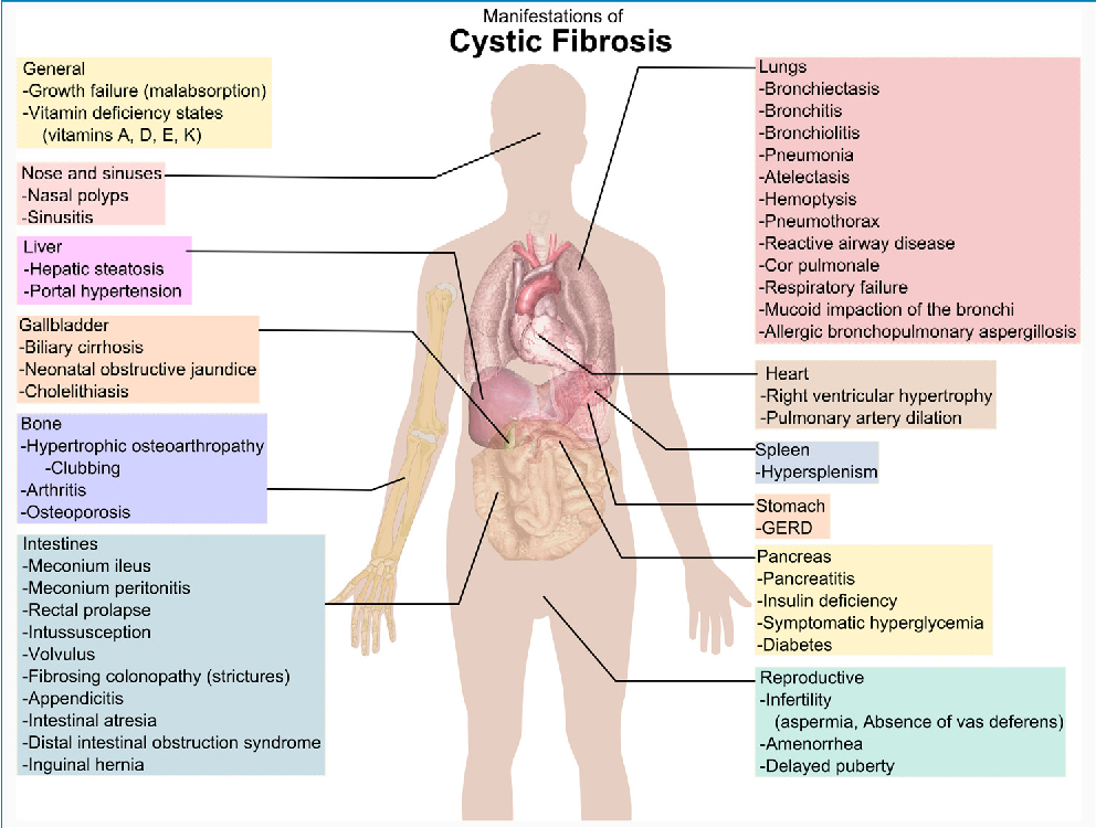 Figure 1 from Common clinical features of CF (respiratory disease ...