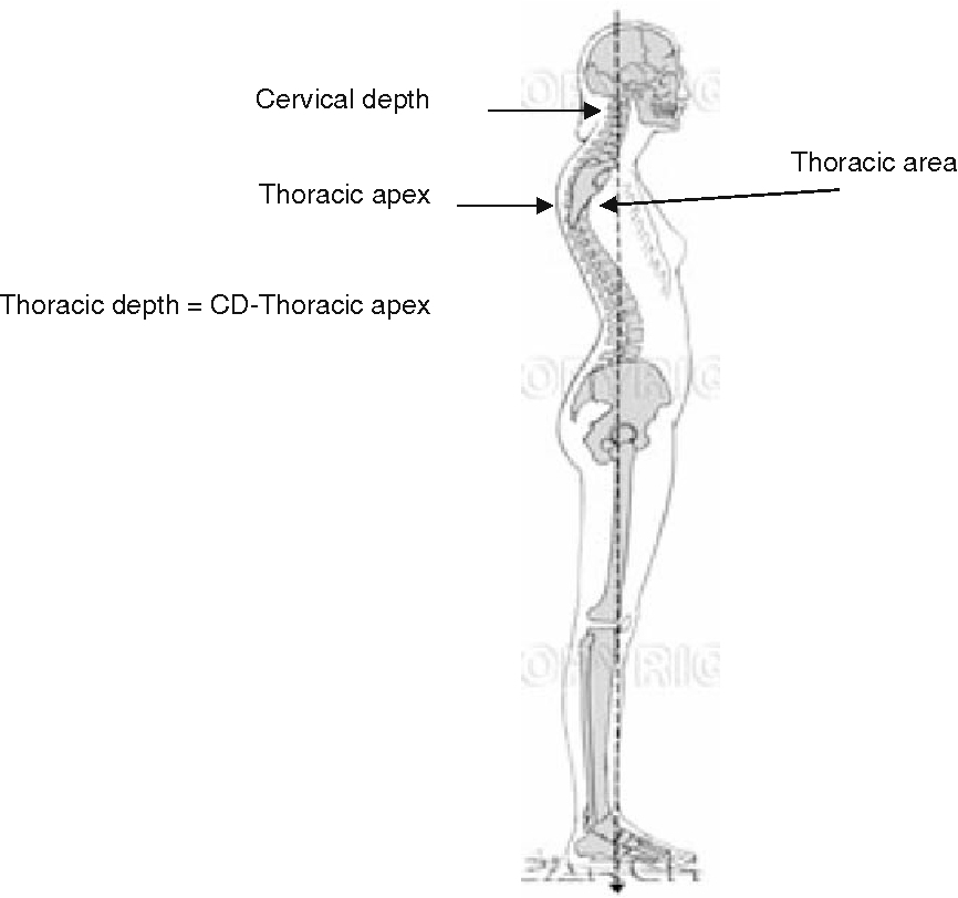 Spinal Extension Exercises Prevent Natural Progression Of Kyphosis