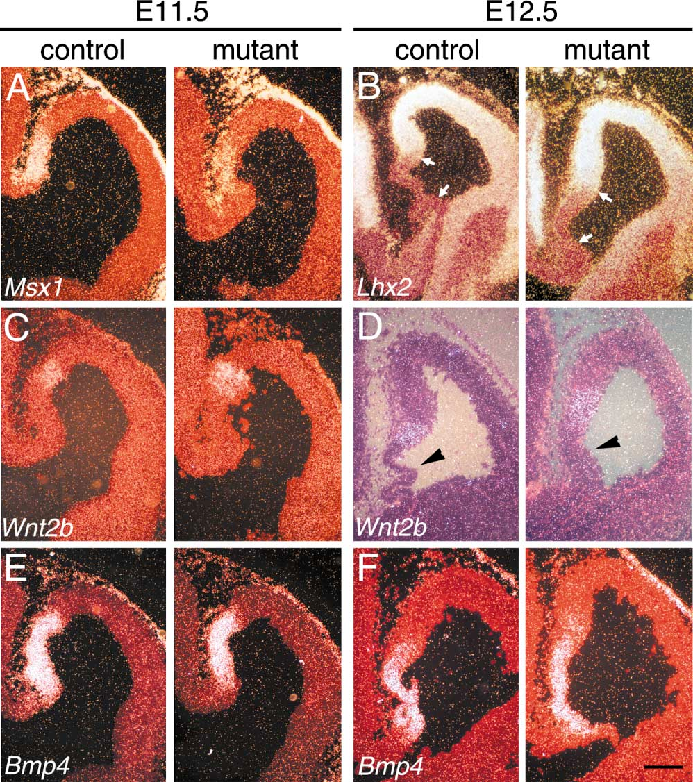 Figure 4. Patterns of Gene Expression that Distinguish Medial and Lateral Telencephalon Are Normal in Bmpr1a-Deficient Mutants