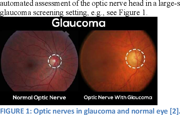 Figure 1 for Real-Time Glaucoma Detection from Digital Fundus Images using Self-ONNs