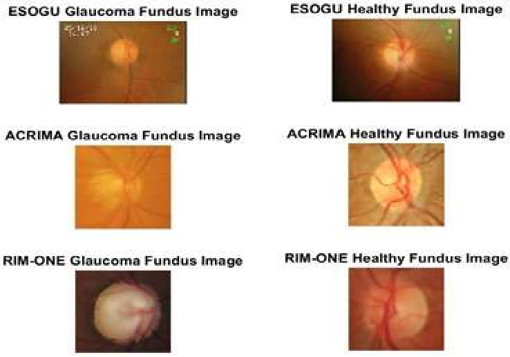 Figure 3 for Real-Time Glaucoma Detection from Digital Fundus Images using Self-ONNs