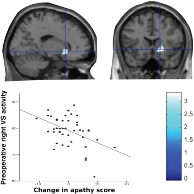 Fig. 2. Decreased metabolism within right ventral striatum is associated with greater increase in apathy scores following deep brain stimulation surgery. Adapted from Robert et al. (2014) with permission.