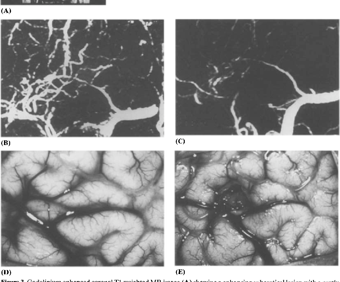 Usefulness of two-dimensional time-of-flight MR angiography combined ...