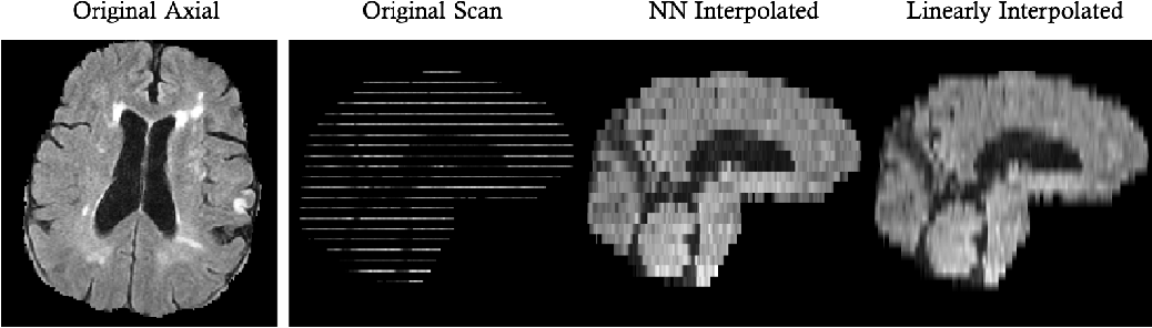 Figure 1 for Fast Learning-based Registration of Sparse Clinical Images