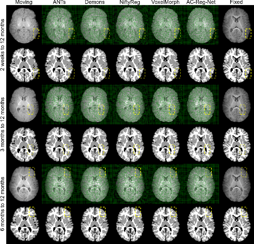 Figure 3 for An Auto-Context Deformable Registration Network for Infant Brain MRI