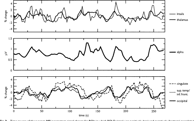 Physiological Basis of the Alpha Rhythm