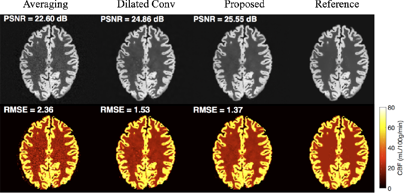 Figure 3 for DeepASL: Kinetic Model Incorporated Loss for Denoising Arterial Spin Labeled MRI via Deep Residual Learning