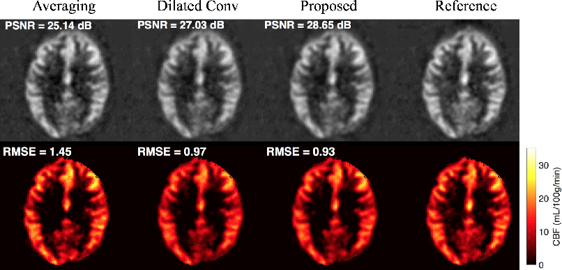 Figure 4 for DeepASL: Kinetic Model Incorporated Loss for Denoising Arterial Spin Labeled MRI via Deep Residual Learning