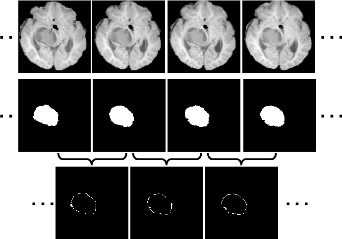 Figure 1 for Inter-slice Context Residual Learning for 3D Medical Image Segmentation