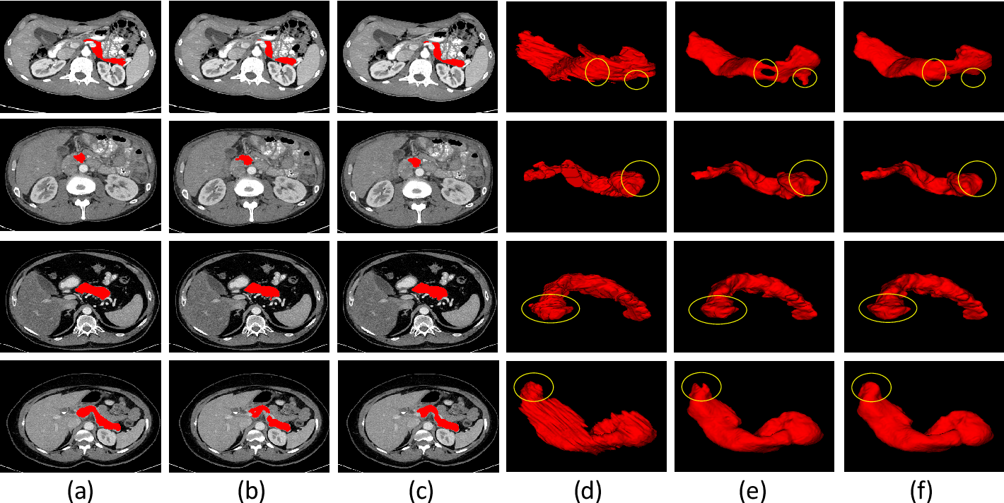 Figure 4 for Inter-slice Context Residual Learning for 3D Medical Image Segmentation