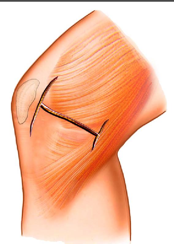 Medial patella retinaculum plasty for treatment of habitual patellar ...