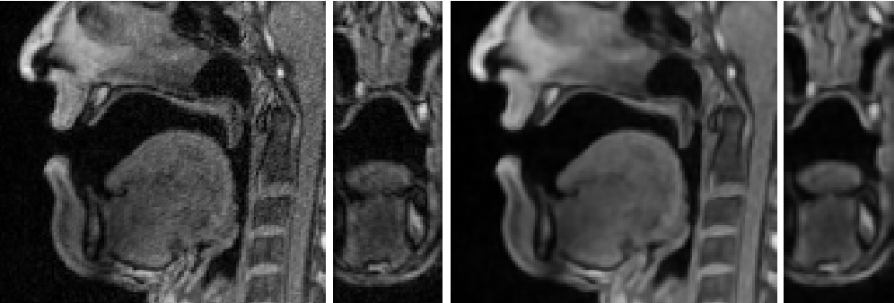 Figure 1 for A Multilinear Tongue Model Derived from Speech Related MRI Data of the Human Vocal Tract