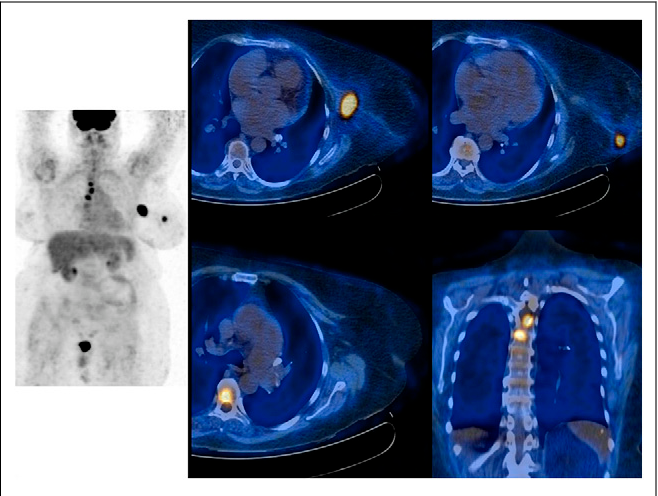 Figure 3 from ¹⁸F-FDG PET/CT for Staging and Restaging of
