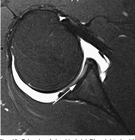 Figure 13 from Normal and variant anatomy of the shoulder on MRI ...