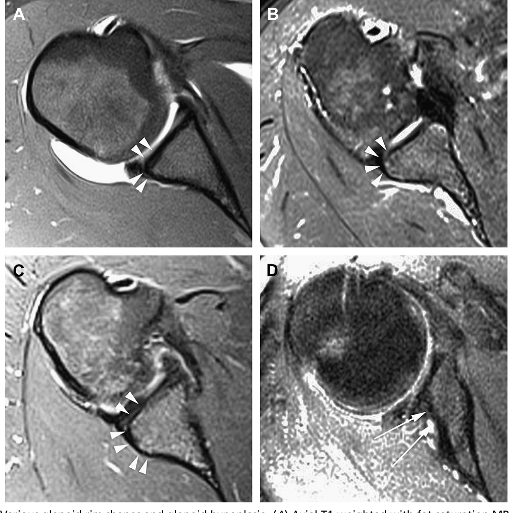 Figure 3 from Normal and variant anatomy of the shoulder on MRI ...