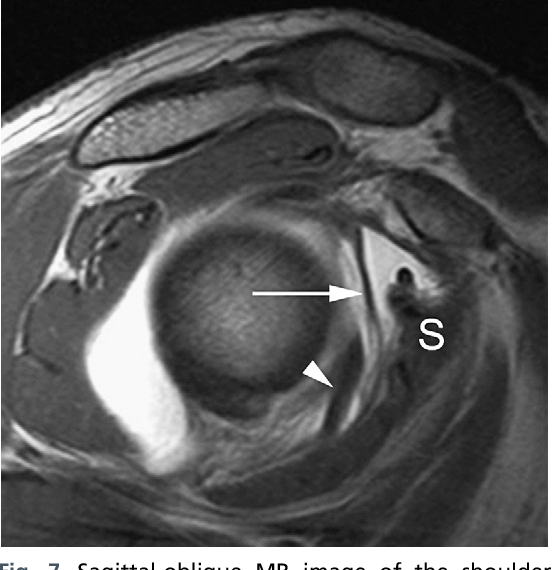 Figure 7 from Normal and variant anatomy of the shoulder on MRI ...
