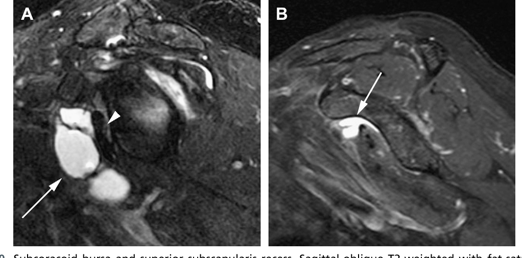 Figure 10 from Normal and variant anatomy of the shoulder on MRI ...