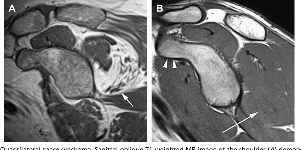 Figure 9 from Normal and variant anatomy of the shoulder on MRI ...