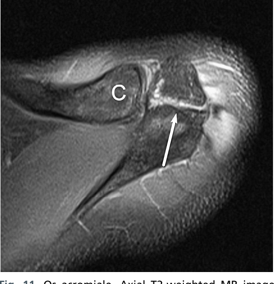 Figure 11 From Normal And Variant Anatomy Of The Shoulder On Mri