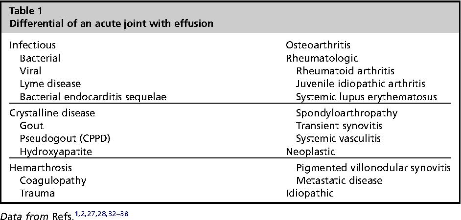 Sinovita a tratamentului simptomatologiei articula?iei genunchiului ?i a chistului brutarului