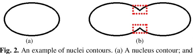 Figure 2 for Bending Loss Regularized Network for Nuclei Segmentation in Histopathology Images