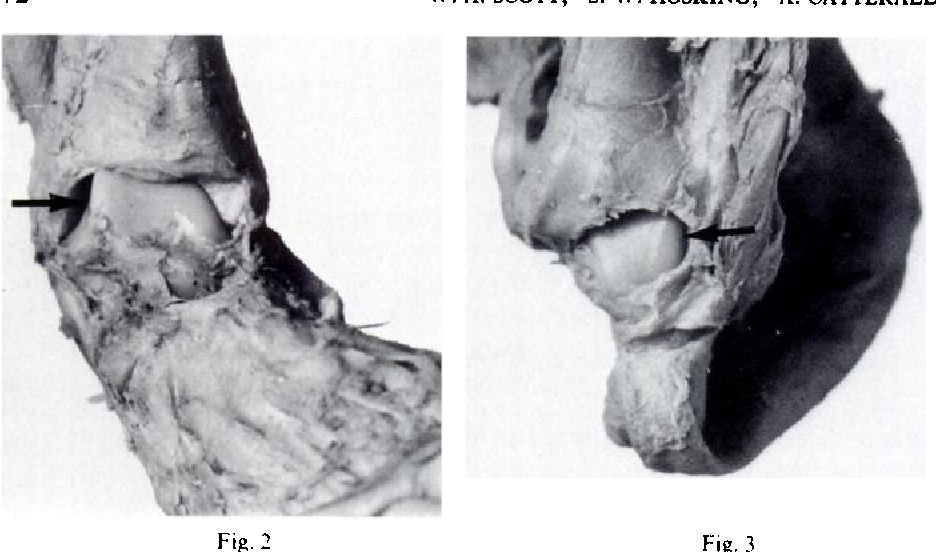 Figure 2 From Club Foot Observations On The Surgical Anatomy Of