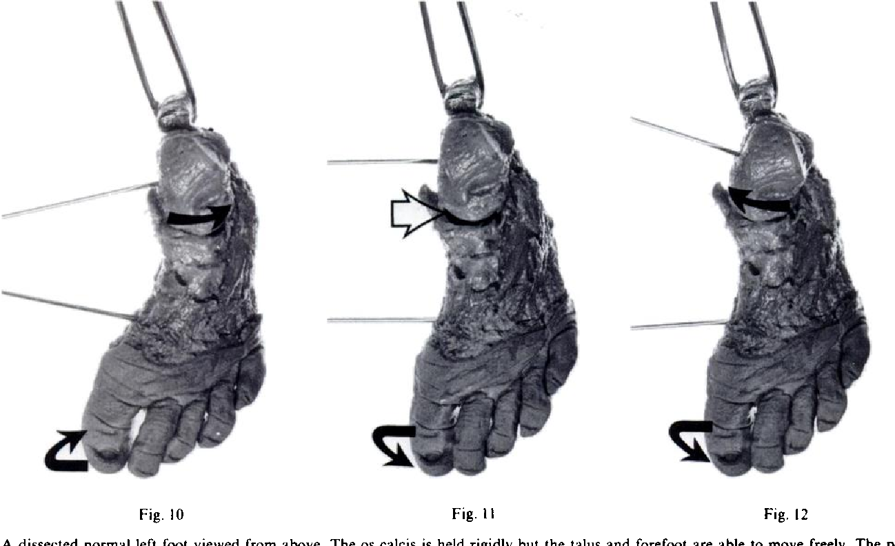 Figure 10 From Club Foot Observations On The Surgical Anatomy Of
