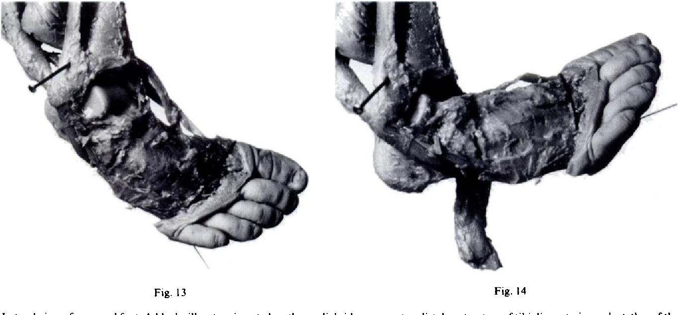 Figure 13 From Club Foot Observations On The Surgical Anatomy Of