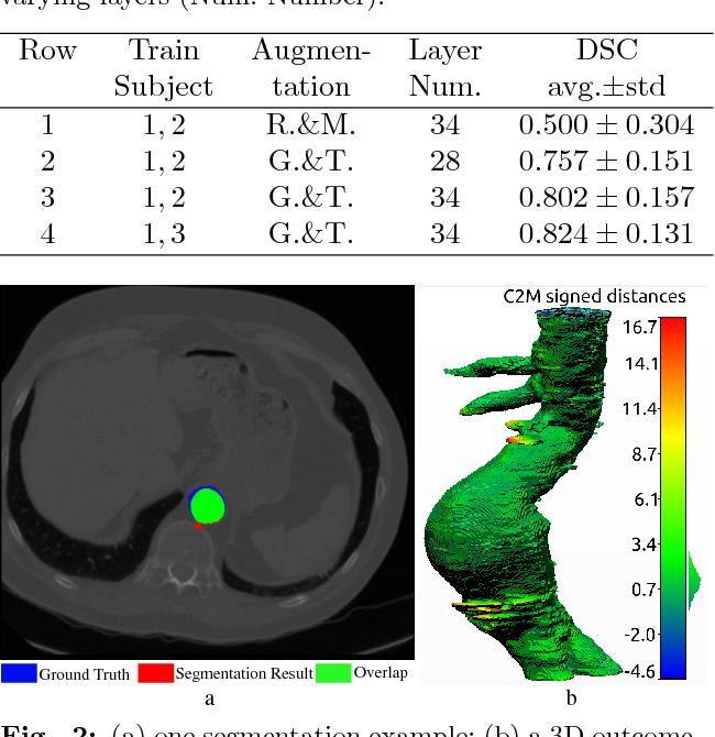 Figure 2 for Abdominal Aortic Aneurysm Segmentation with a Small Number of Training Subjects