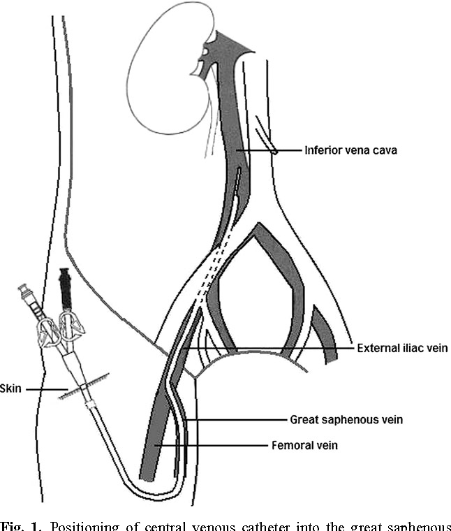The Great Saphenous Vein For Central Venous Access And Haemodialysis