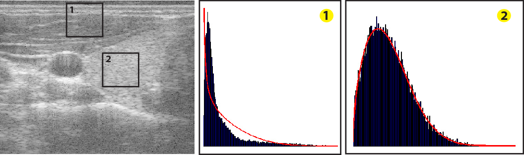 Figure 3: Left: Ultrasound image with two example regions. Middle and right: histograms of the regions together with Nakagami MLE fits (red).