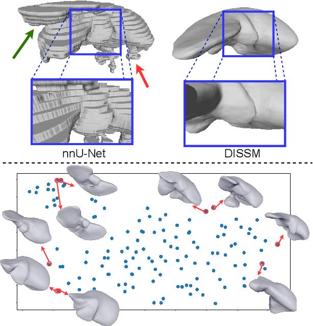 Figure 1 for Deep Implicit Statistical Shape Models for 3D Medical Image Delineation