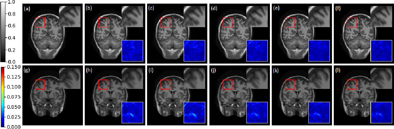 Figure 4 for Co-VeGAN: Complex-Valued Generative Adversarial Network for Compressive Sensing MR Image Reconstruction