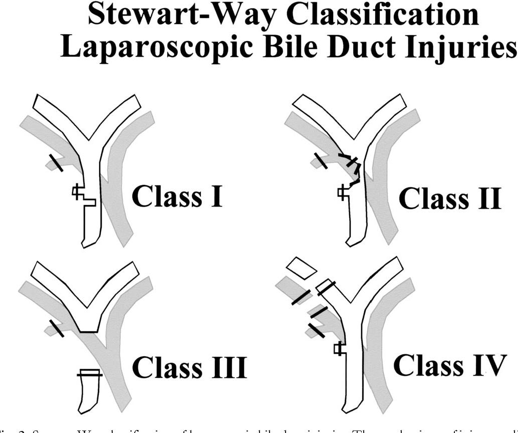 Common Hepatic Duct Semantic Scholar