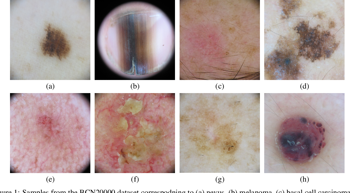 Figure 1 for BCN20000: Dermoscopic Lesions in the Wild