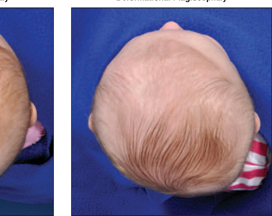 figure 3 from deformational plagiocephaly a review semantic scholar