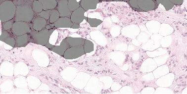 Figure 3 for Detecting Cancer Metastases on Gigapixel Pathology Images