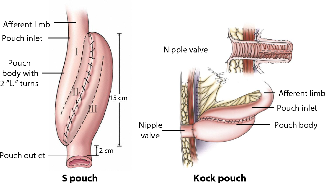Medical, endoscopic, and surgical management of ileal pouch ...