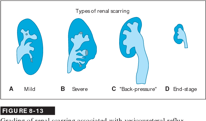 reflux nephropathy in adults
