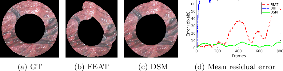 Figure 4 for Deep Sequential Mosaicking of Fetoscopic Videos