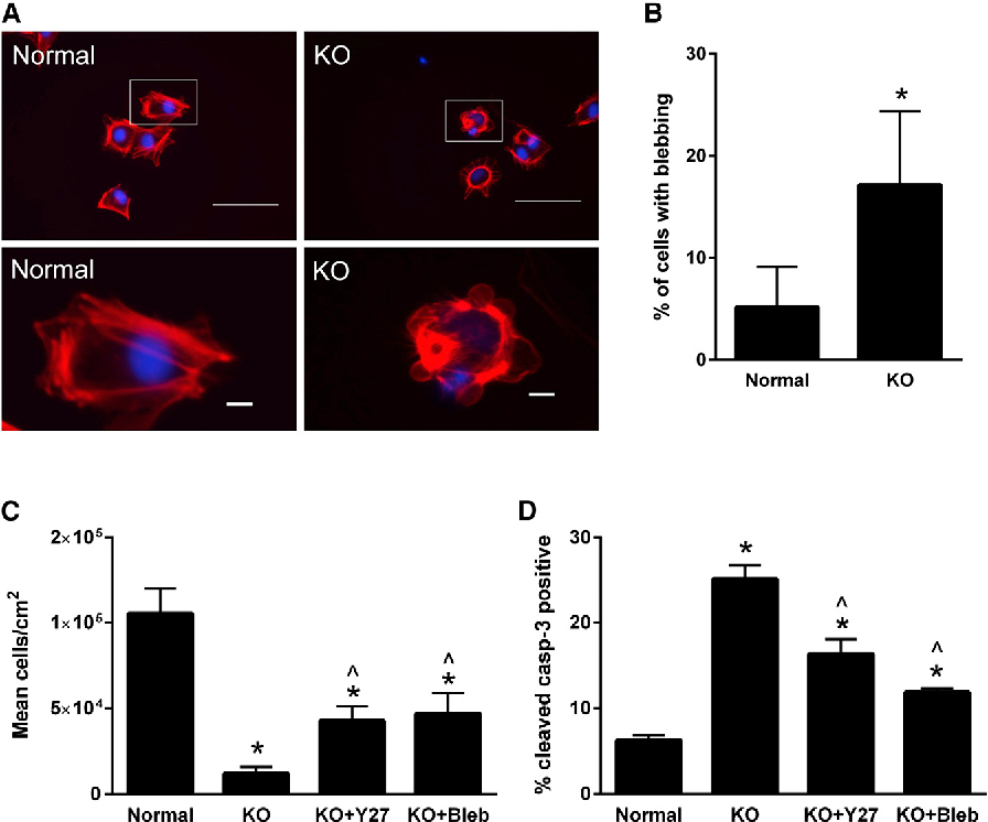 Figure 5. Partial Rescue of Cell SelfRenewal by Treatment with Inhibitors of Cell Contractility