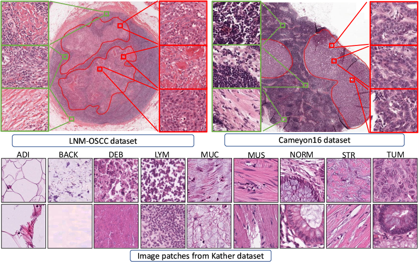 Figure 3 for Self-Path: Self-supervision for Classification of Pathology Images with Limited Annotations