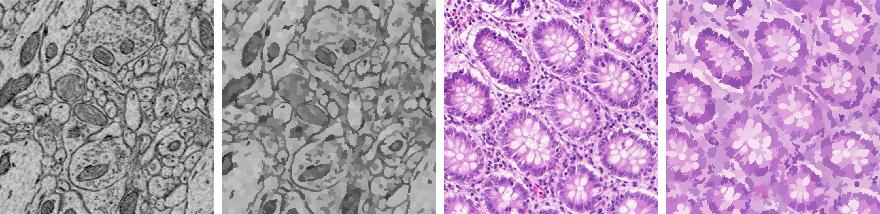 Figure 1 for SPDA: Superpixel-based Data Augmentation for Biomedical Image Segmentation