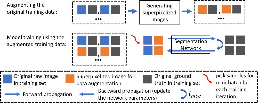 Figure 3 for SPDA: Superpixel-based Data Augmentation for Biomedical Image Segmentation