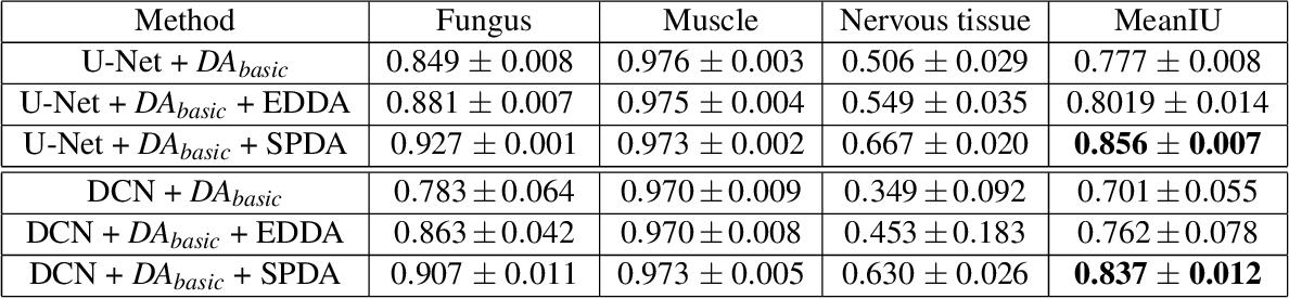 Figure 4 for SPDA: Superpixel-based Data Augmentation for Biomedical Image Segmentation